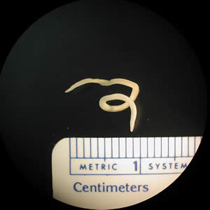 The Centers for Disease Control provides this image of one of the roundworms commonly found in fish